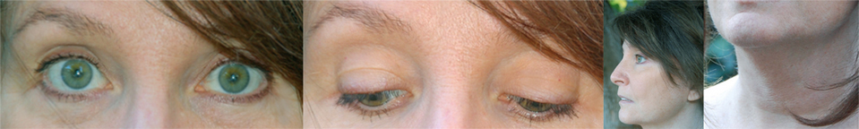 FlexEffect Facial Exercise results for Hooded lids, Eye bags, Jowls, sagging skin, wrinkled Neck.