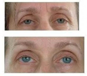 FlexEffect Facialbuilding Before & After