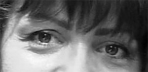 Before facial Exercise FlexEffect:  hooded lids, puffy eye bags, crow's feet, thin skin