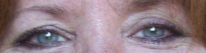 Before Facial Exercise FlexEffect: hooded lids, crepe eyelid skin, wrinkled lids, eye bags