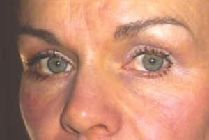 Results facial exercise FlexEffect: Dark Circles gone,  lifted upper lids, smoothed frown lines, thicker skin, fullness in upper cheek,  lifted nasolabials